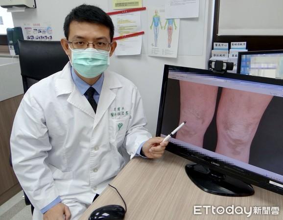 改善皮膚障壁功能 調整異位性皮膚炎病人的免疫系統擺脫搔癢   ETtod