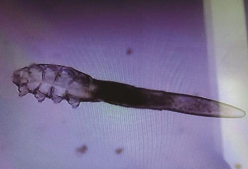 26歲OL種假睫毛癢爆 醫放大一看「長滿一條條活蟎蟲」