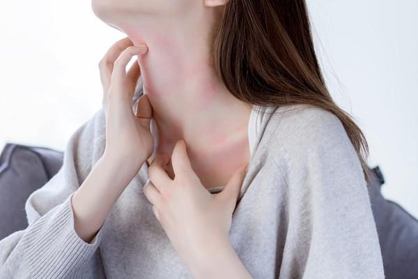 異位性皮膚炎是被你吃出來的!常吃這些食物小心會更癢   ETtoday探