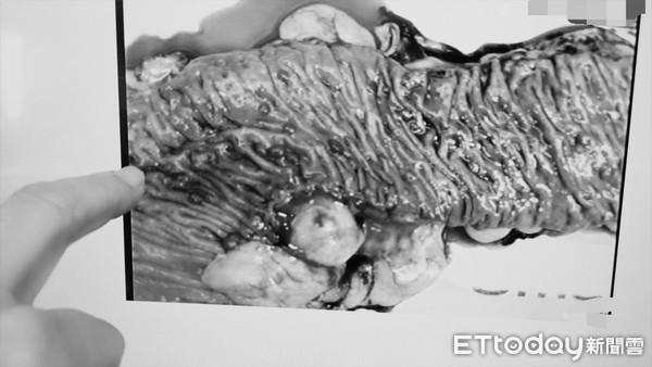 2代4人罹「遺傳性大腸瘜肉症」100%變腸癌!醫曝:國中開始長息肉 |