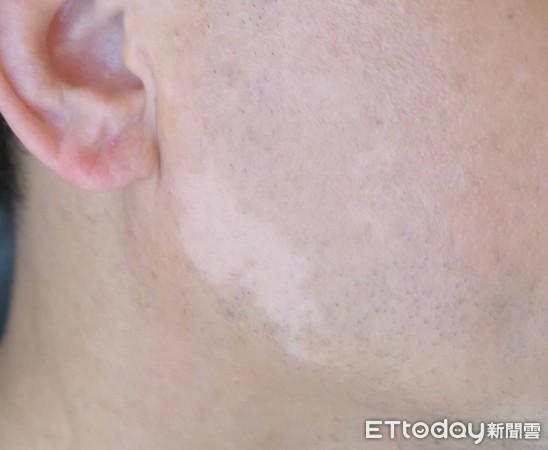 治白斑新法 中國附醫創「點陣表皮移植術」還51歲男老師帥氣臉蛋