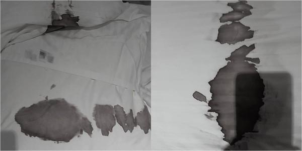 床單枕頭「一片恐怖血崩」 情侶認了!釣出房務:常看到茄子套套