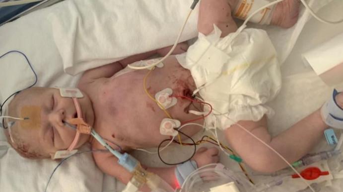 ▲▼ 寶寶一出生就沒有心跳。(圖/翻攝自gofundme/Amber Findlay)