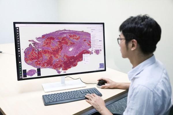 醫療科技新突破!北醫大研發AI系統「3分鐘揪肺癌病灶」