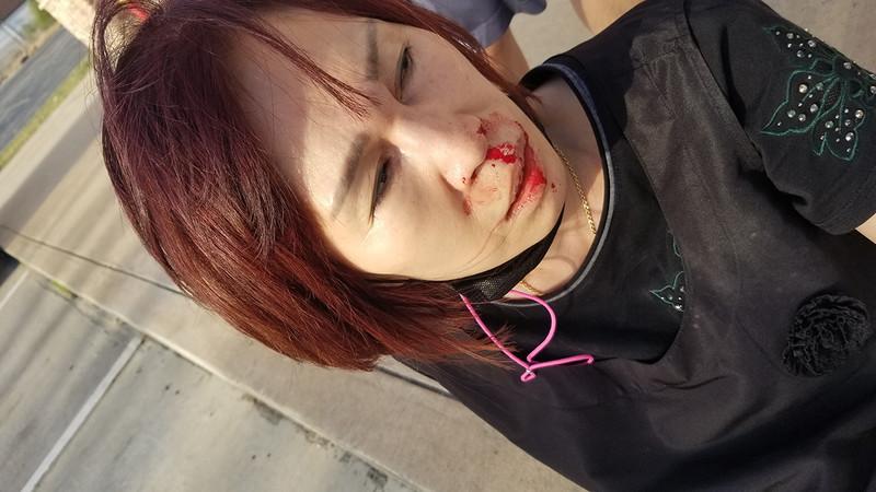 ▲▼在休士頓經營美容用品店的韓裔女性遭黑人婦女圍毆,鼻梁斷裂。(圖/翻攝自ABC13)