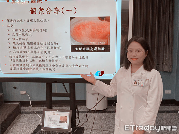 老婦人幻想幻聽答非所問 竟是泌尿道感染惹禍 | ETtoday健康雲 |