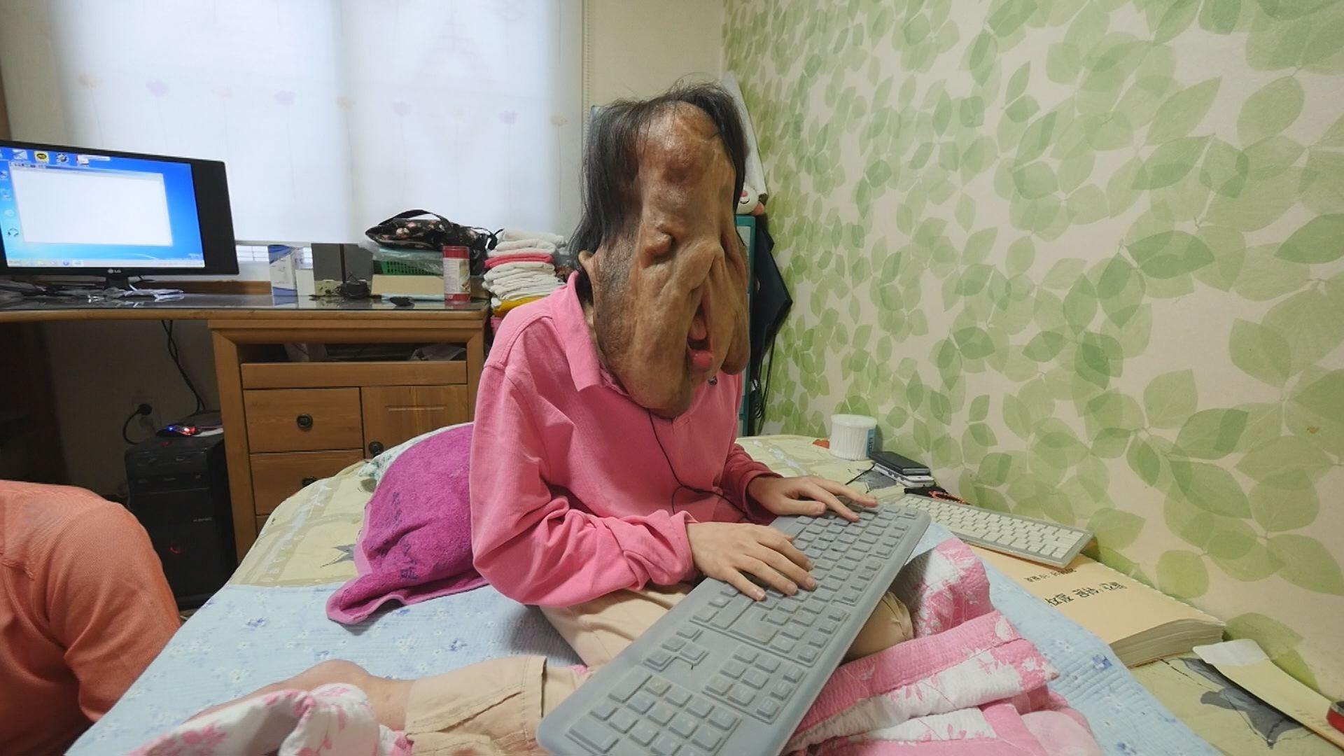 ▲▼沈玄熙只能用鍵盤打字來與家人溝通(圖/翻攝自NADOFUNDING)