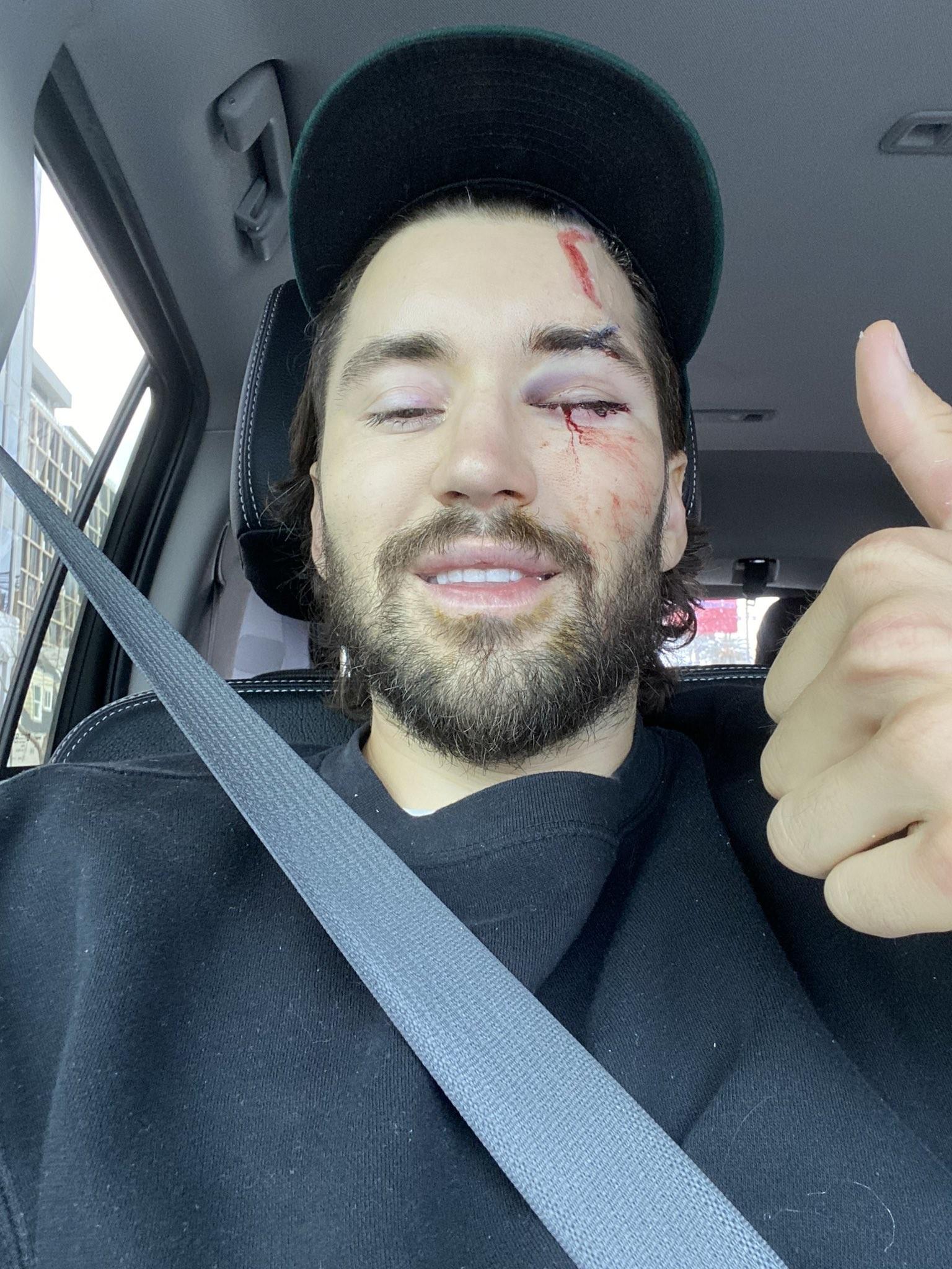 ▲▼維泰克在挖土機事故後,眼窩留下傷疤。(圖/翻攝自Twitter@jeffwittek)