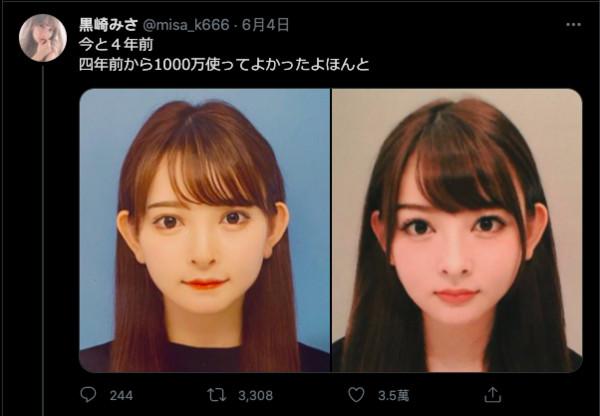 ▲黑崎美紗曬出整形前後對比。(圖/翻攝推特/misa_k666)