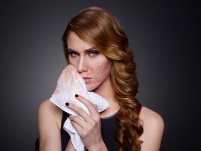 對皮膚病患來說,化妝是救贖的偽裝…