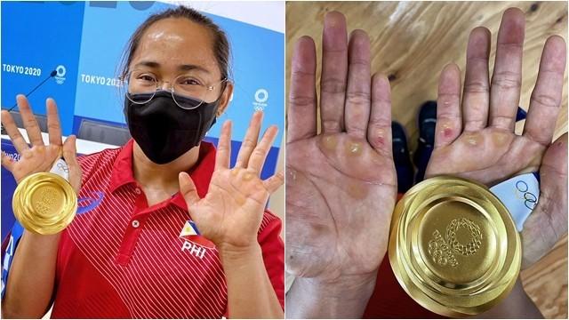 ▲▼菲律賓女子舉重選手迪亞斯手掌長滿繭、水泡。(圖/翻攝自推特)