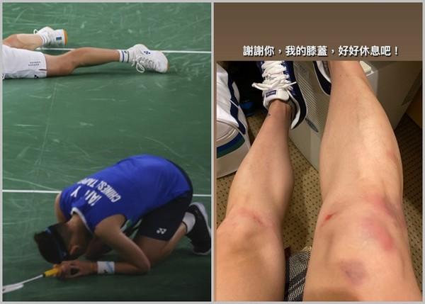 戴資穎撲倒磨地!凌晨PO滿腳傷照:謝謝妳,我的膝蓋,好好休息吧