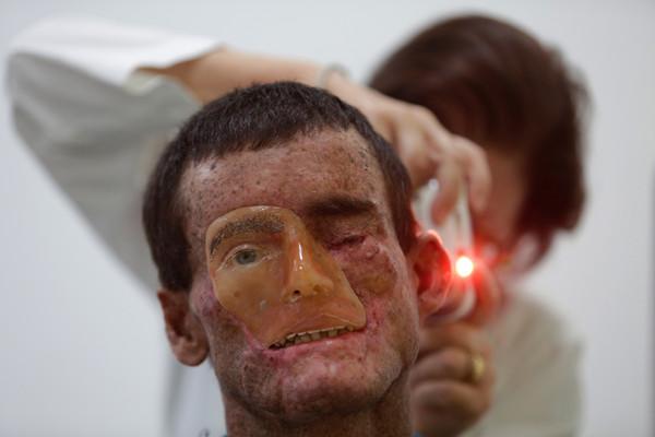 症 色素 性 乾 皮