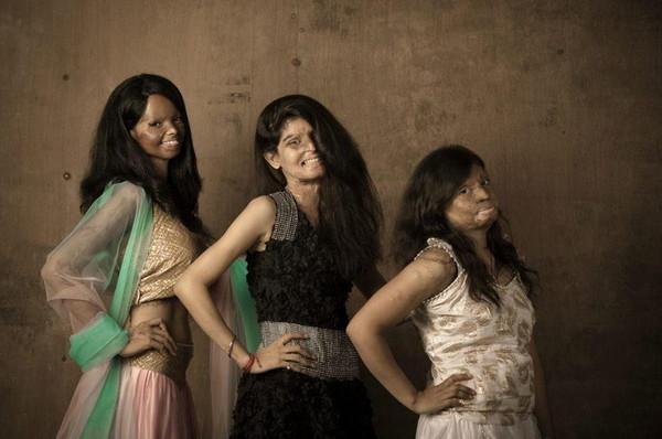 印度毀容女孩,妳很美麗! 用笑容對抗不義