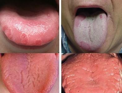 內有噁舌!舌頭7徵兆讓你健康亮紅燈