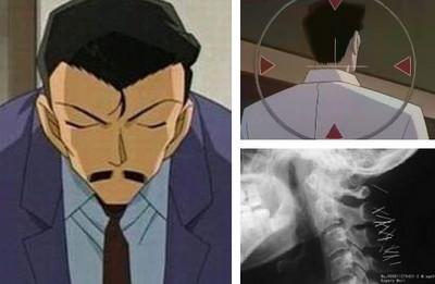 這些年來,小五郎到底中了多少麻醉針