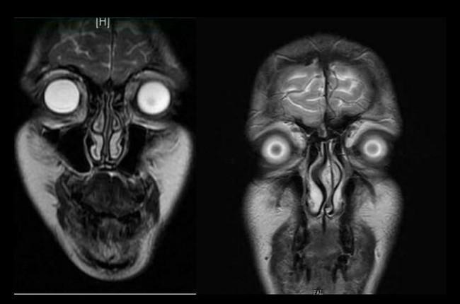 醫師每次照核磁共振,都像地獄走一遭