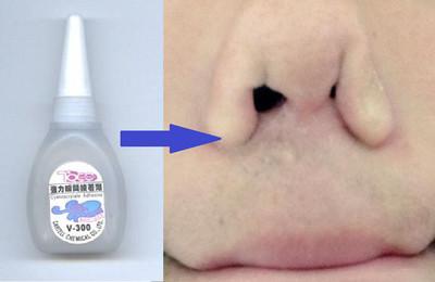 鼻涕擤多會變傻?故事從瓶強力膠開始