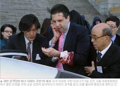 南韓怪漢突襲美駐韓大使 「朝太陽穴插3刀」
