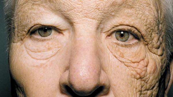 陽光加速皮膚老化的鐵證 69歲司機左邊臉像90歲!