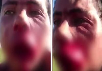11歲女兒遭誘拐,老爸現身狠毆戀童男